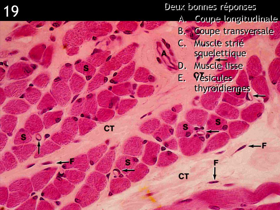 Réponse BCE (épithélium respiratoire)