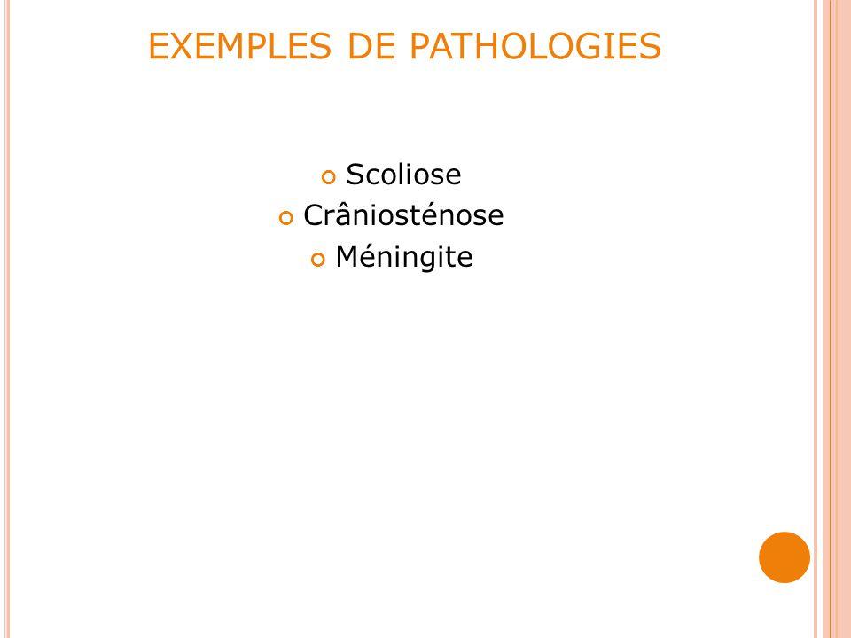 EXEMPLES DE PATHOLOGIES