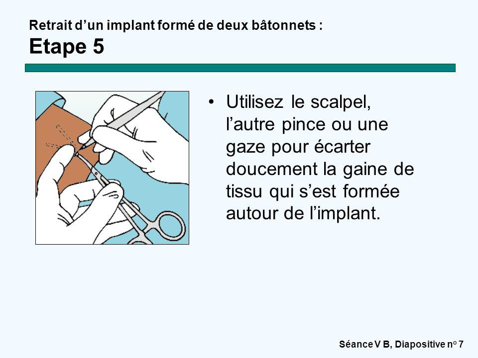 Retrait d'un implant formé de deux bâtonnets : Etape 5