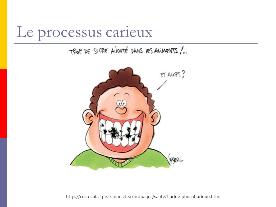 Le processus carieux http://coca-cola-tpe.e-monsite.com/pages/sante/l-acide-phosphorique.html