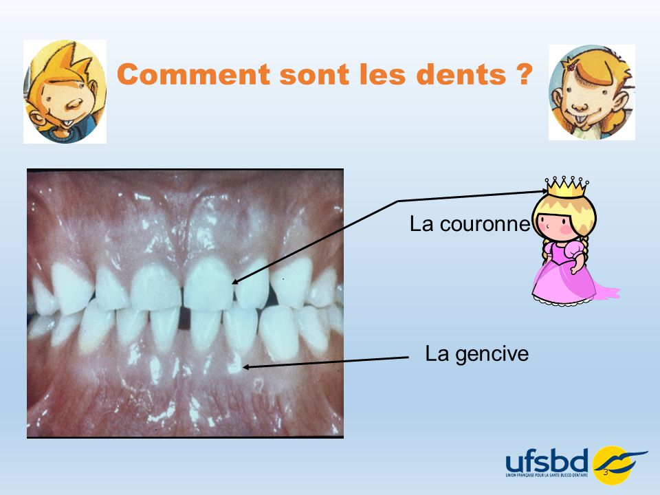 Très UNION FRANCAISE POUR LA SANTÉ BUCCO-DENTAIRE - ppt video online  ML95