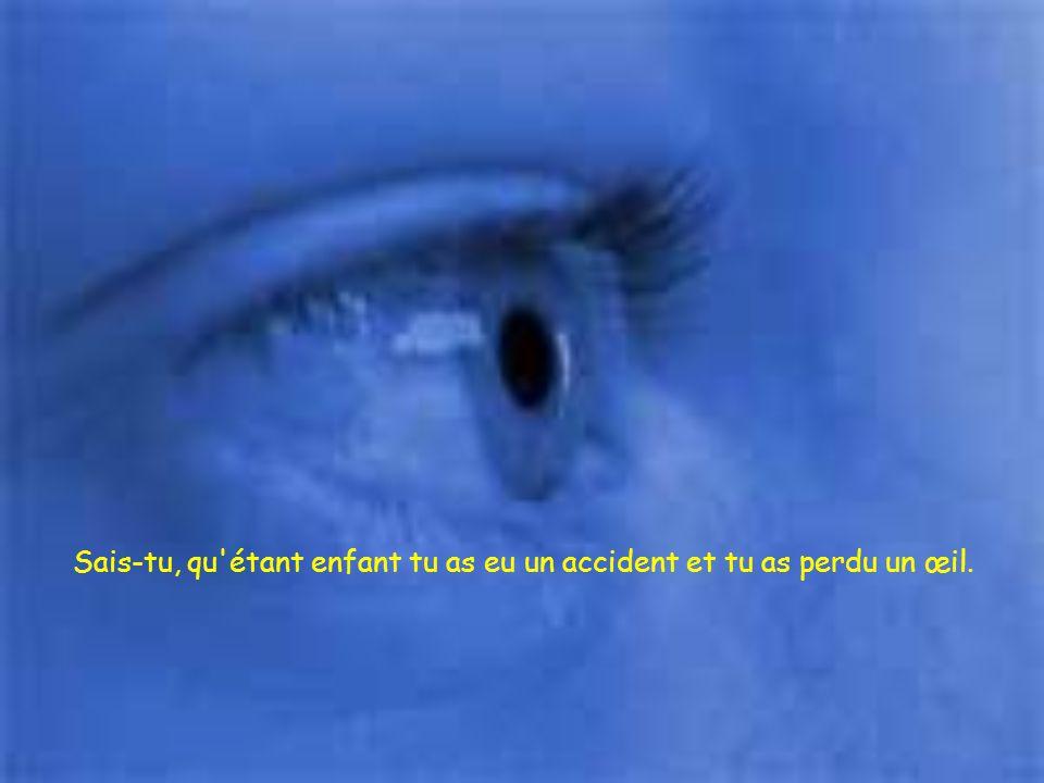 Sais-tu, qu étant enfant tu as eu un accident et tu as perdu un œil.