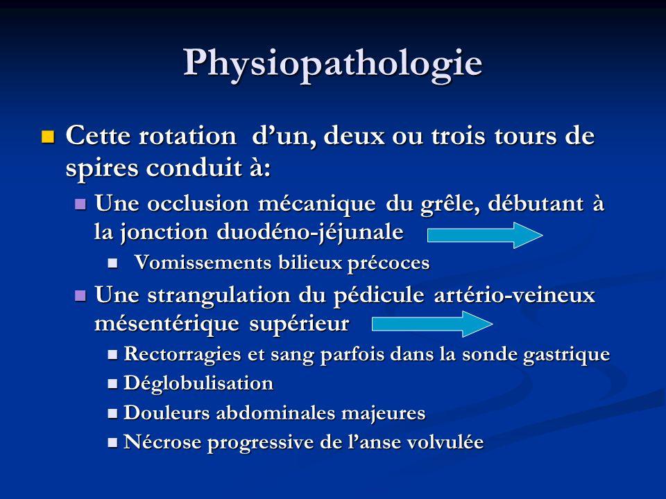Physiopathologie Cette rotation d'un, deux ou trois tours de spires conduit à: