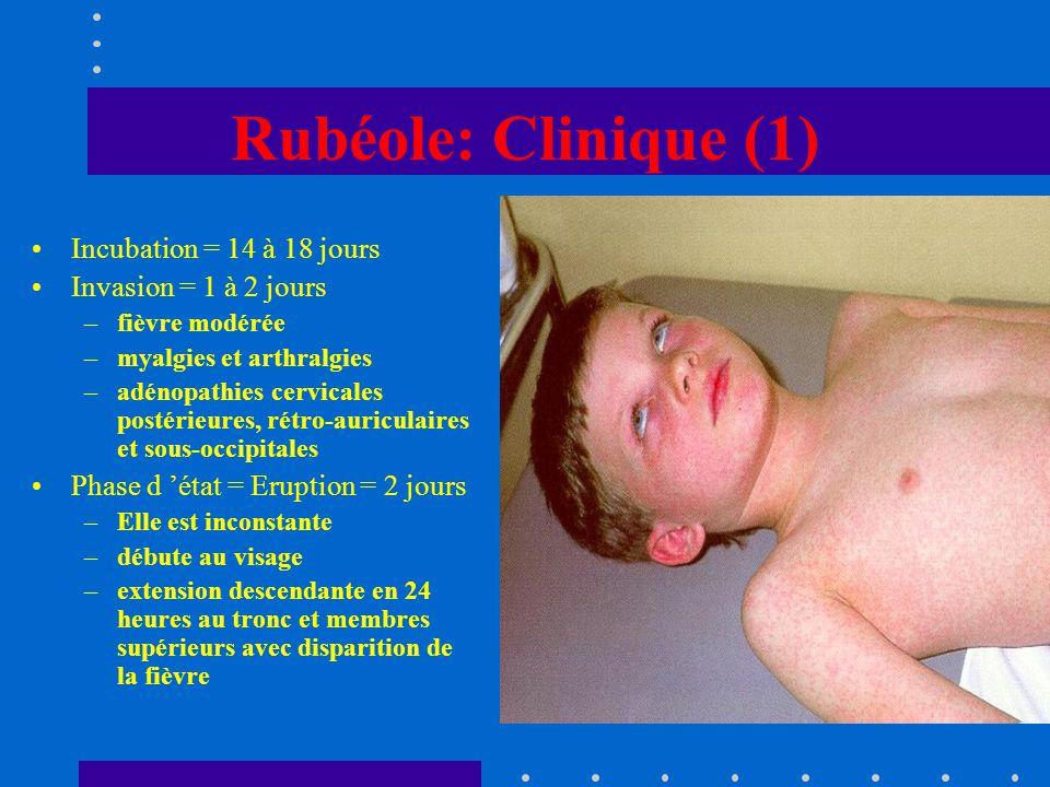 Rubéole: Clinique (1) Incubation = 14 à 18 jours