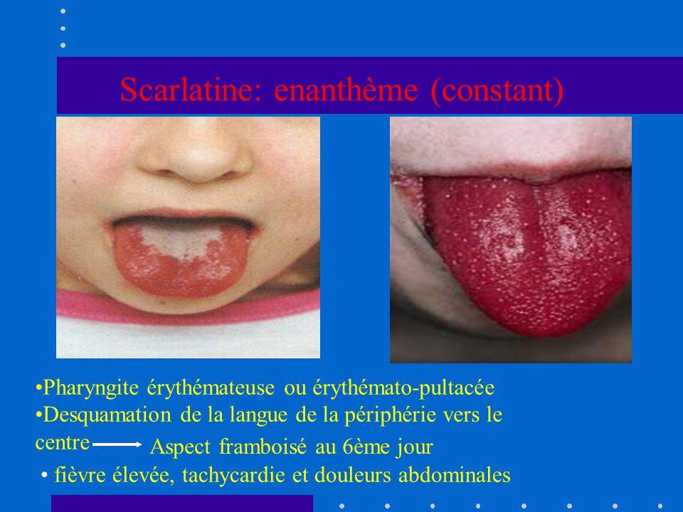 Scarlatine: enanthème (constant)