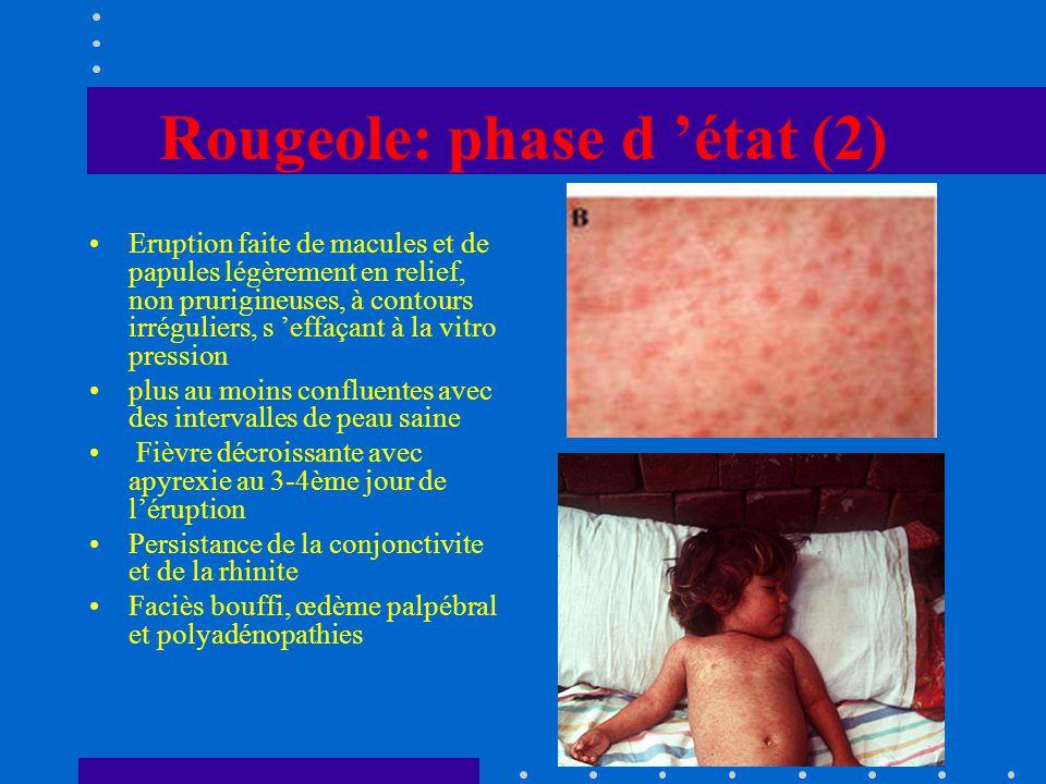 Rougeole: phase d 'état (2)