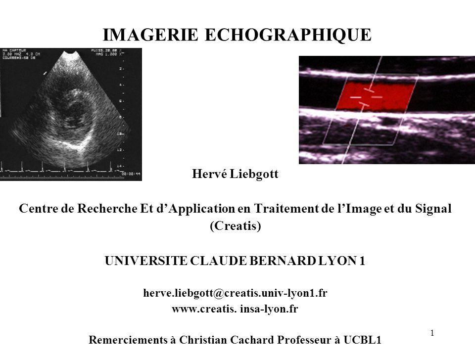 Imagerie echographique ppt t l charger - Centre claude bernard guilherand granges ...