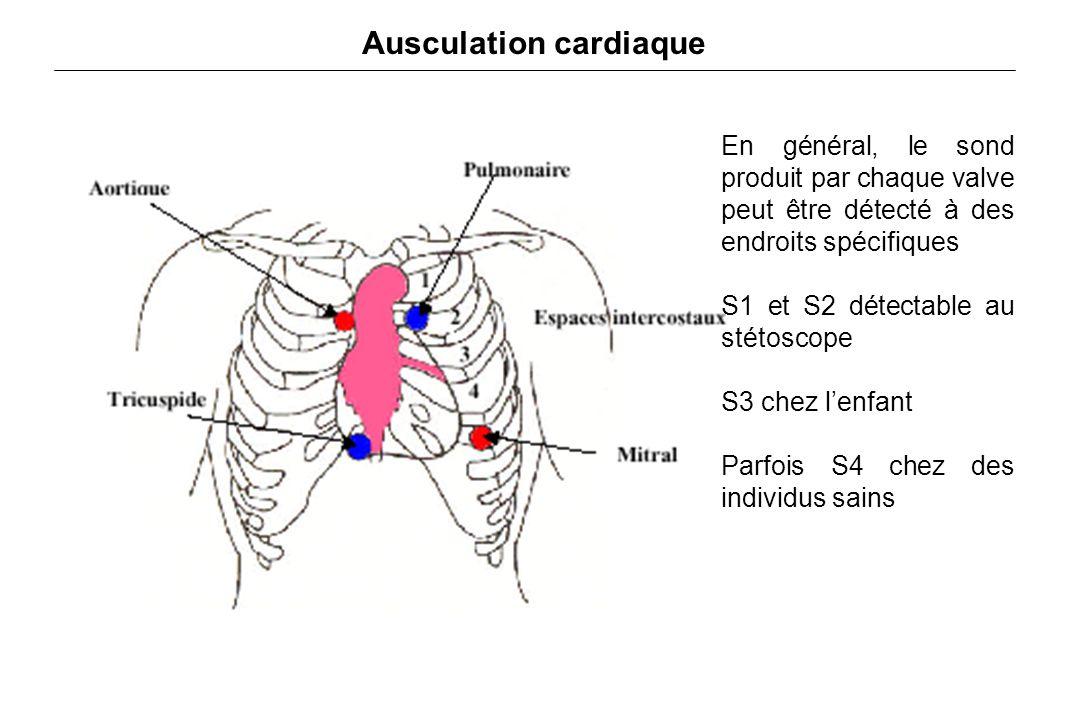 Ausculation cardiaque