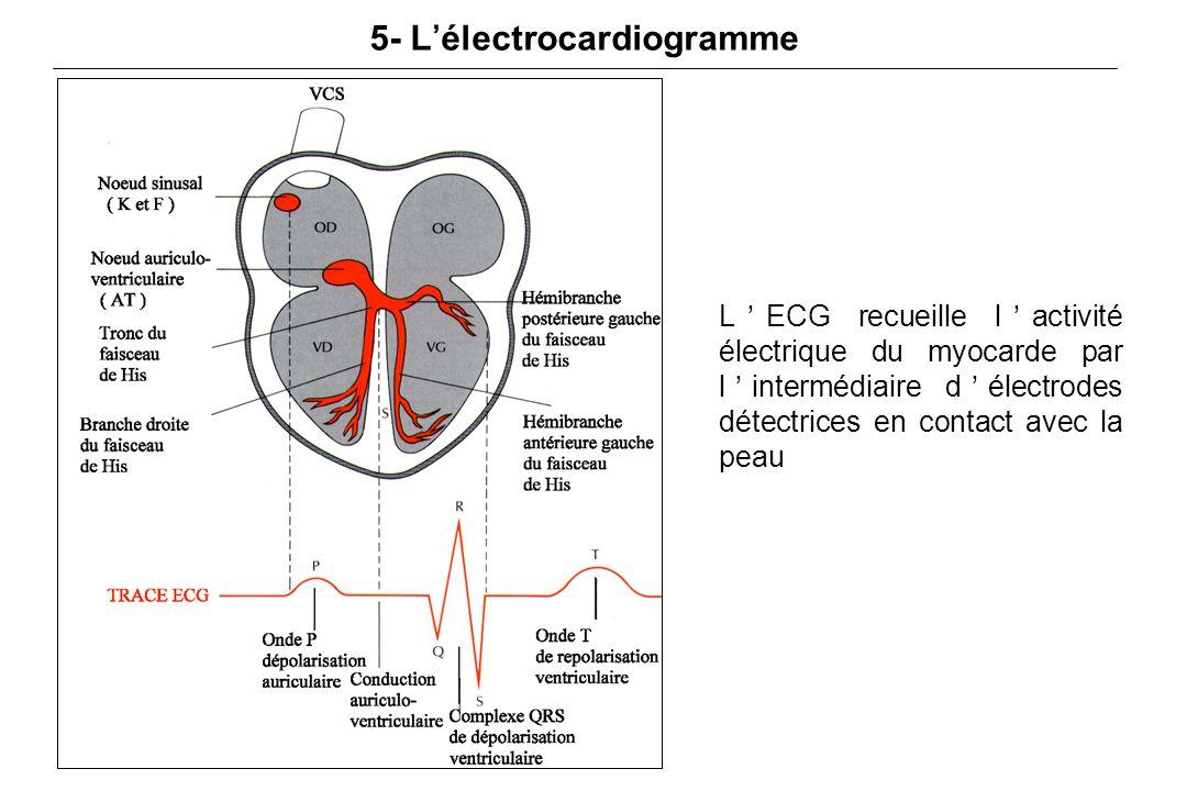 5- L'électrocardiogramme