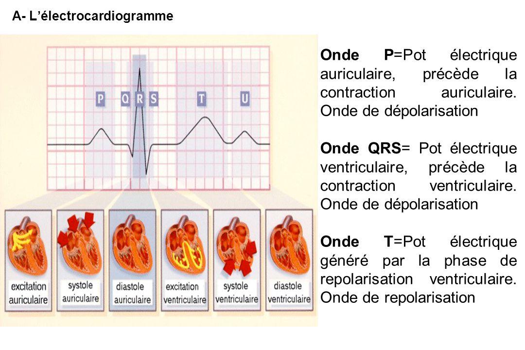 A- L'électrocardiogramme