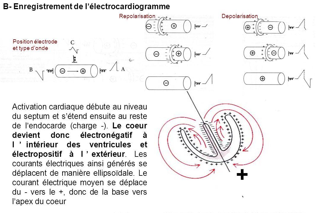 + B- Enregistrement de l'électrocardiogramme