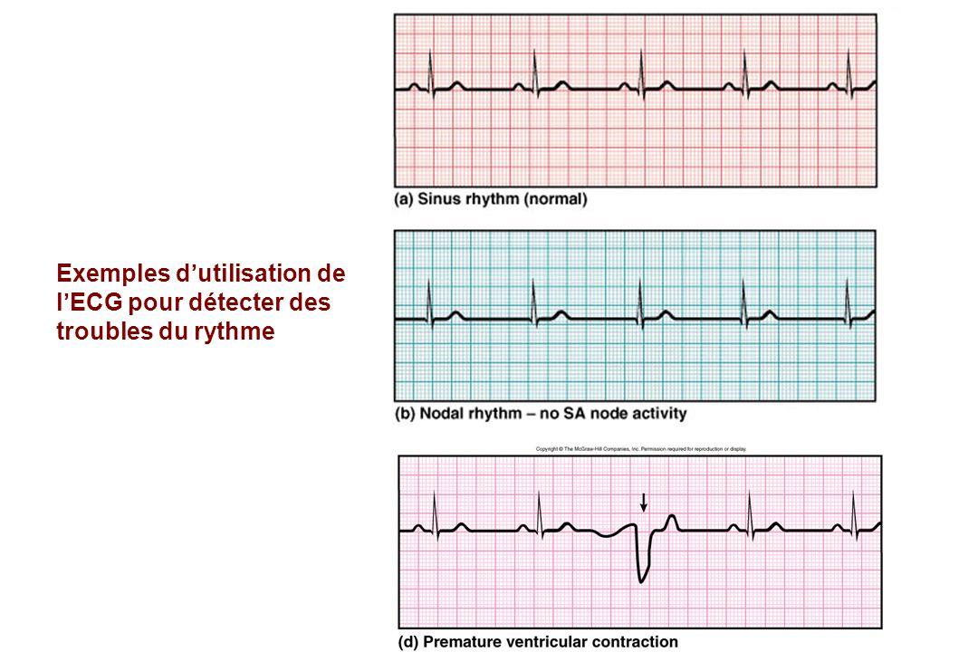 Exemples d'utilisation de l'ECG pour détecter des troubles du rythme