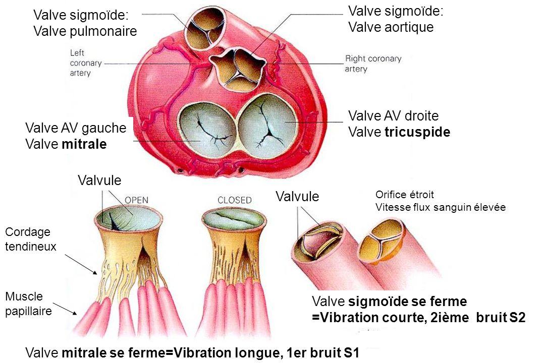 Valve sigmoïde se ferme =Vibration courte, 2ième bruit S2