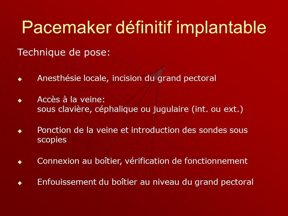 Ou stimulateurs cardiaques ppt video online t l charger - Pose de chambre implantable technique ...