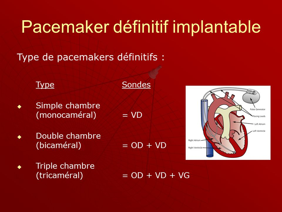 Ou stimulateurs cardiaques ppt video online t l charger - Ablation chambre implantable ...