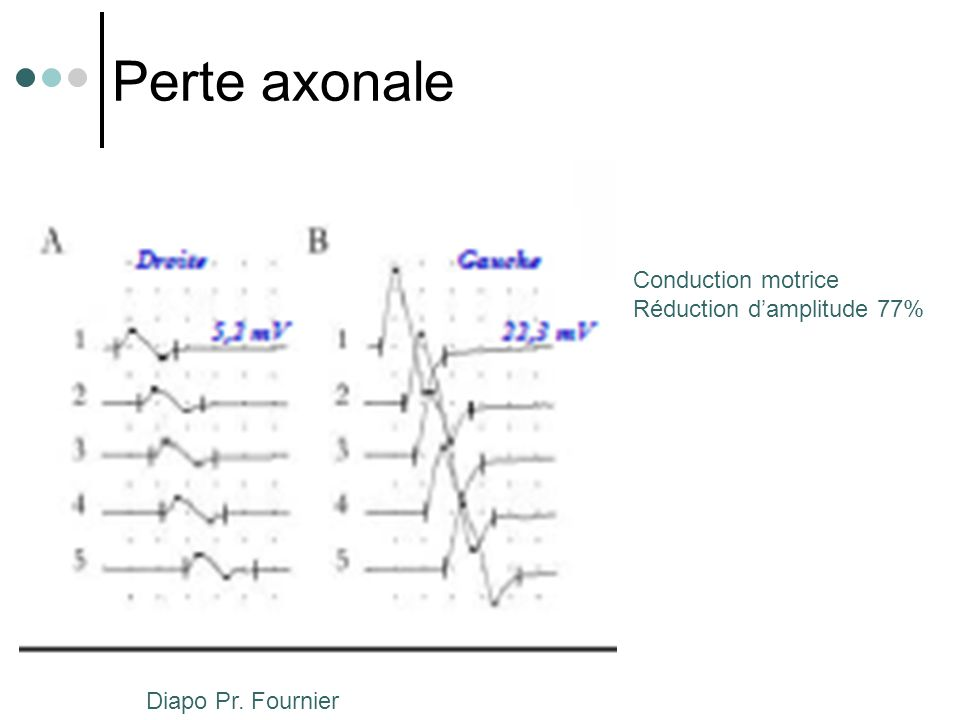 Perte axonale Conduction motrice Réduction d'amplitude 77%