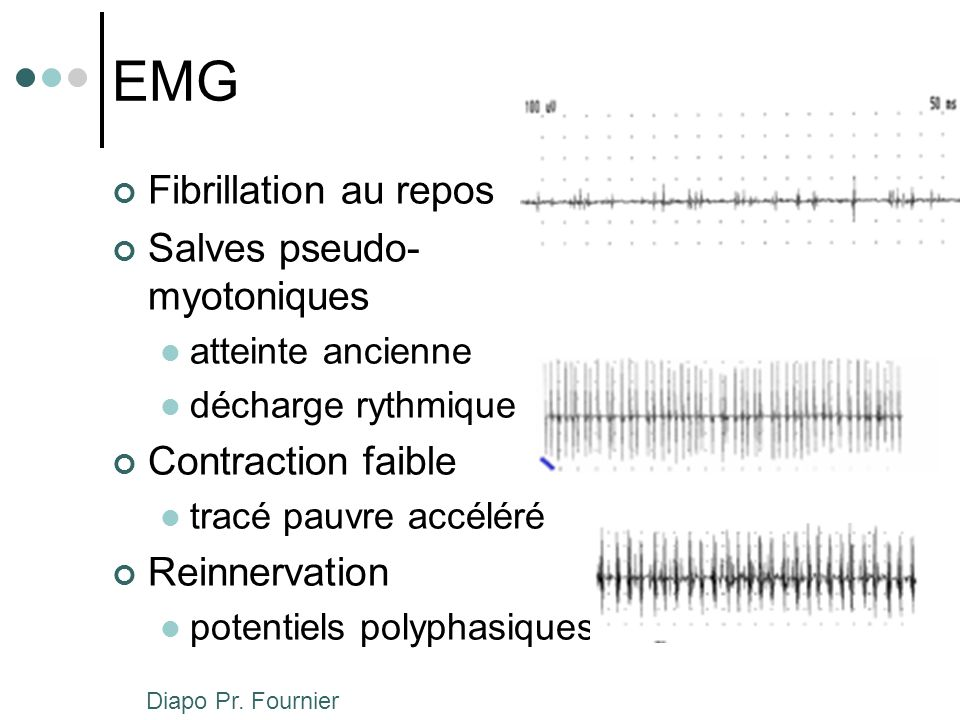 EMG Fibrillation au repos Salves pseudo-myotoniques Contraction faible
