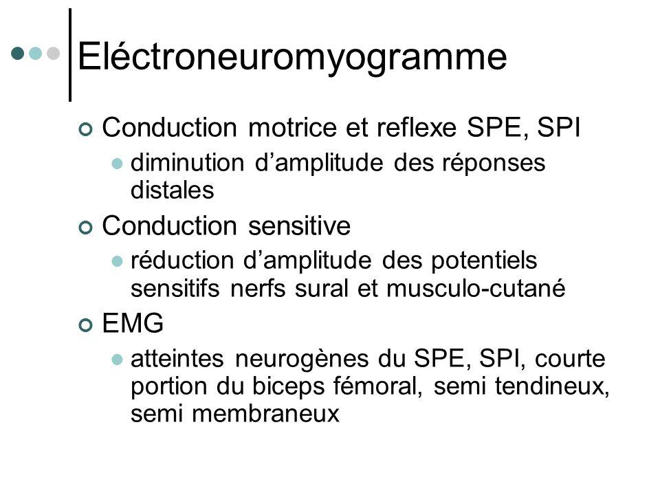Eléctroneuromyogramme