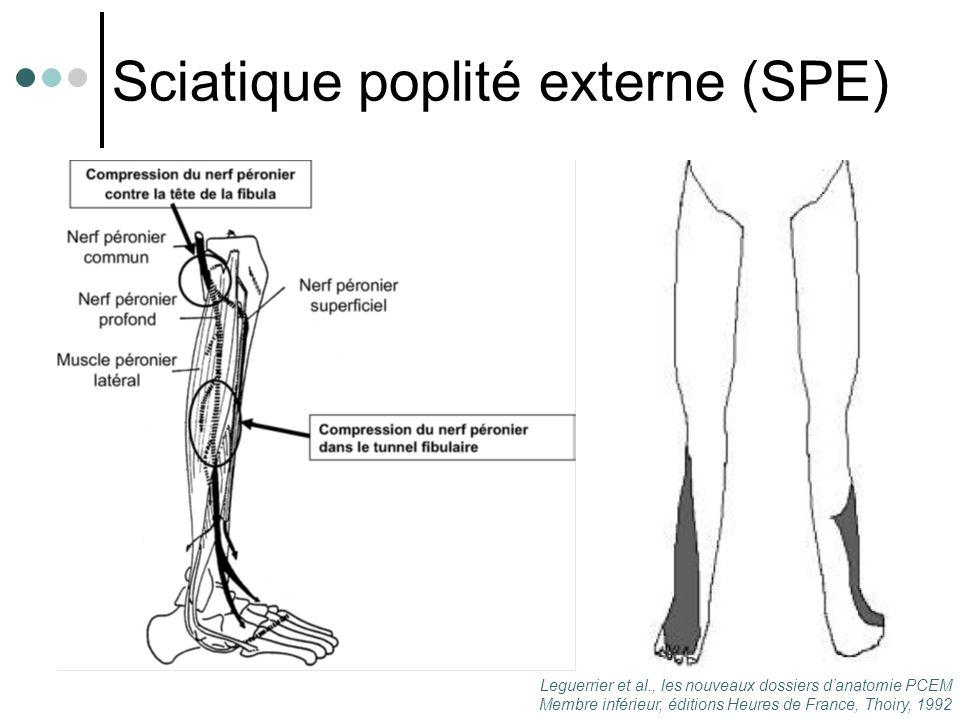 Sciatique poplité externe (SPE)
