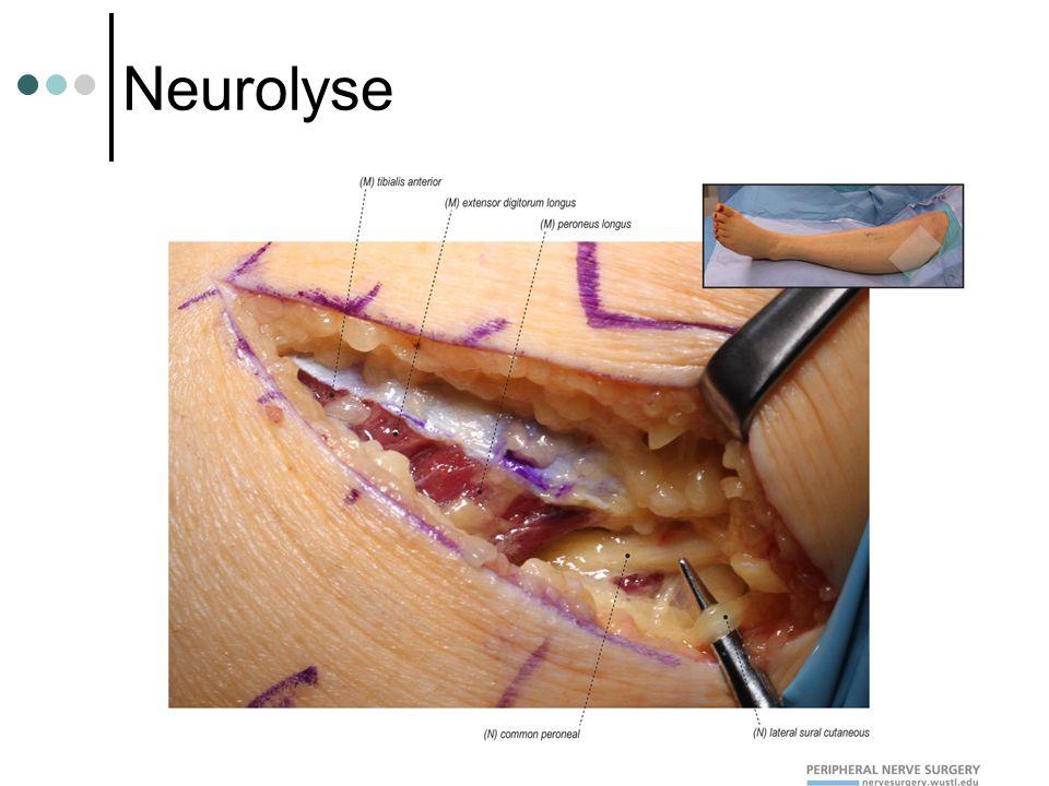 Neurolyse