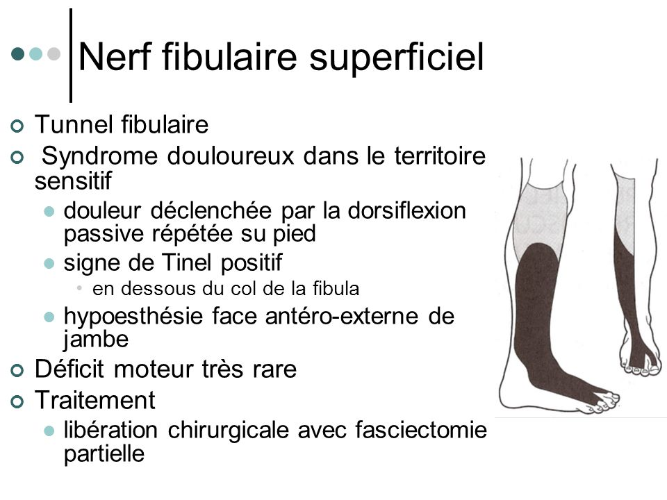 Nerf fibulaire superficiel
