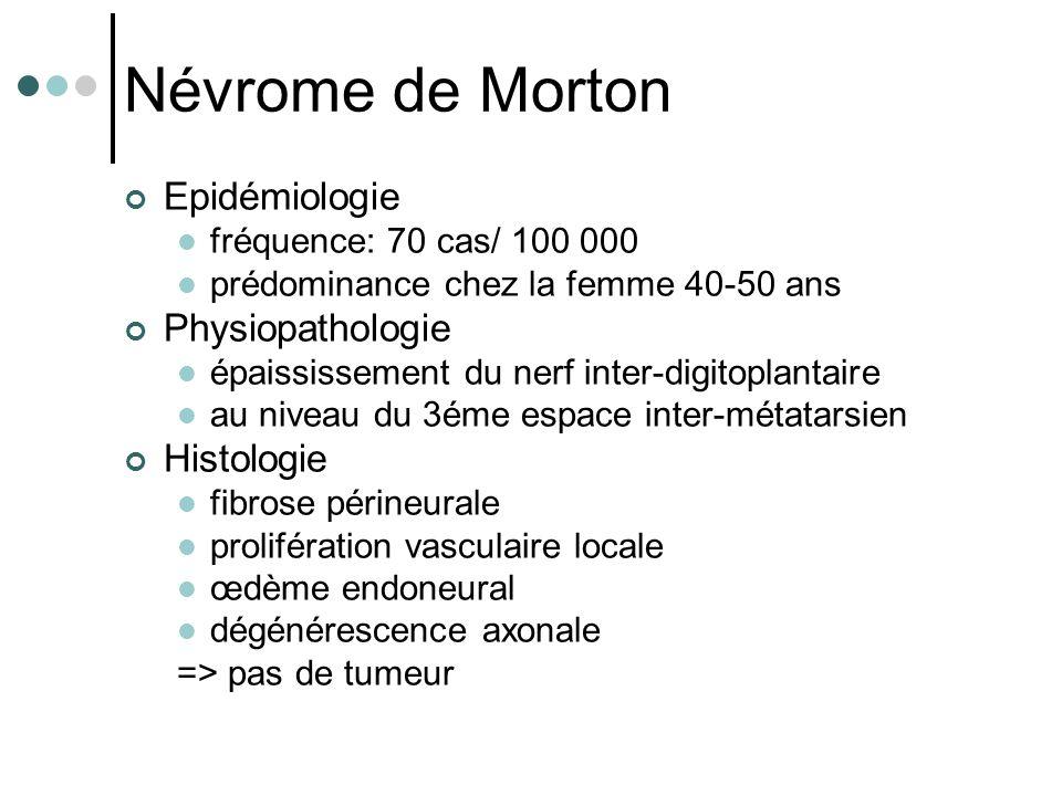 Névrome de Morton Epidémiologie Physiopathologie Histologie