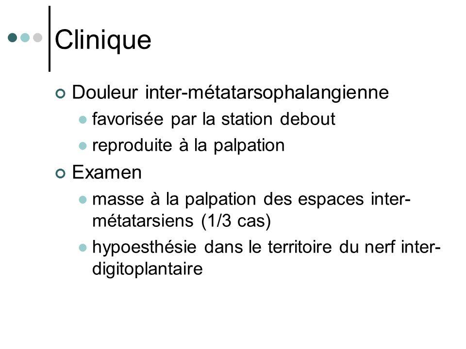 Clinique Douleur inter-métatarsophalangienne Examen