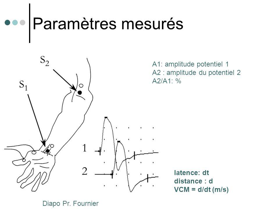 Paramètres mesurés A1: amplitude potentiel 1