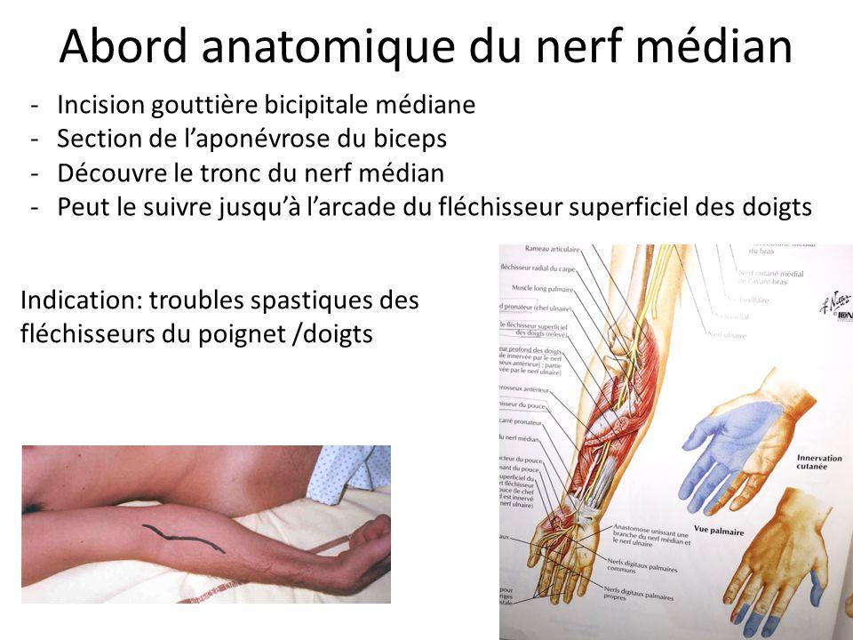 Anatomie chirurgicale pour aborder les nerfs du membre - Peut on couper des branches du voisin ...