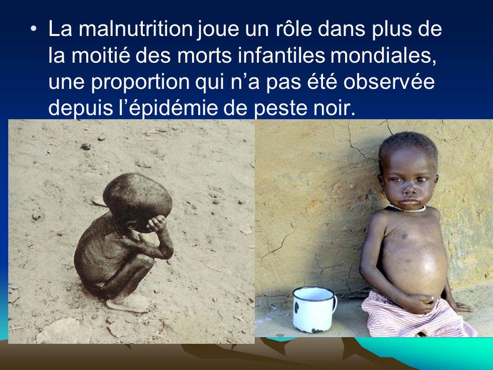 La malnutrition joue un rôle dans plus de la moitié des morts infantiles mondiales, une proportion qui n'a pas été observée depuis l'épidémie de peste noir.