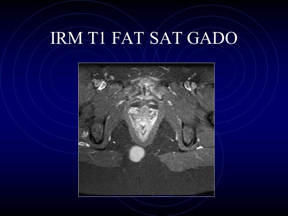 IRM T1 FAT SAT GADO