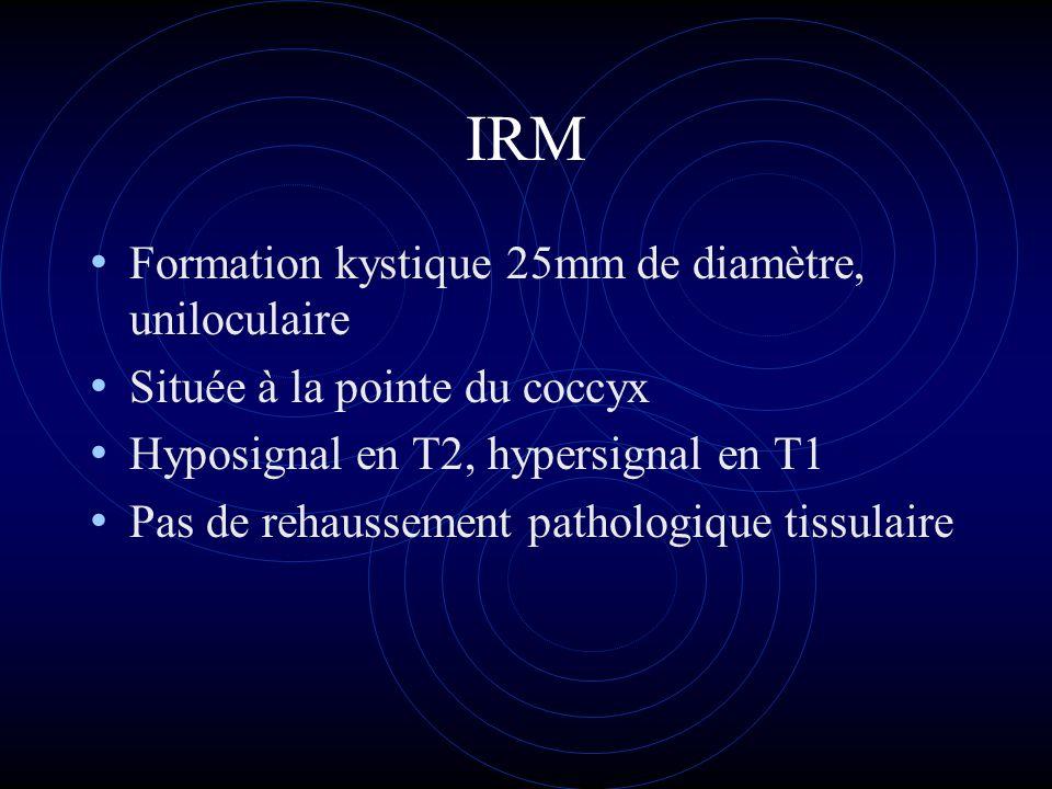 IRM Formation kystique 25mm de diamètre, uniloculaire