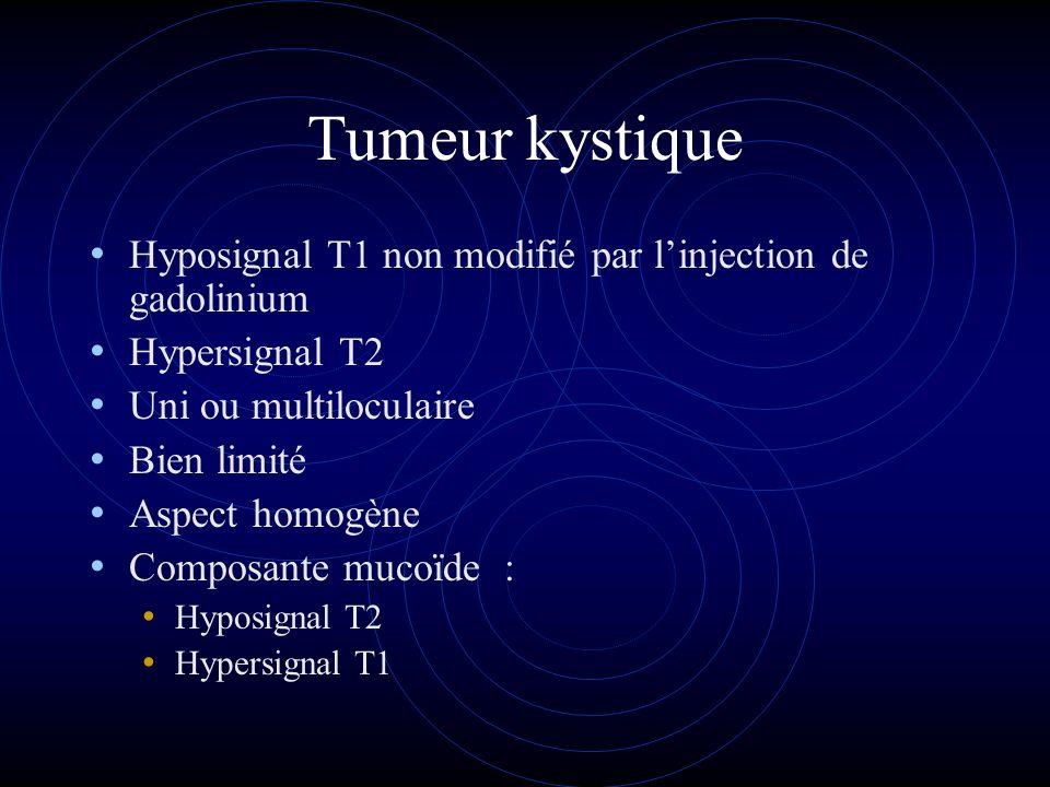 Tumeur kystique Hyposignal T1 non modifié par l'injection de gadolinium. Hypersignal T2. Uni ou multiloculaire.