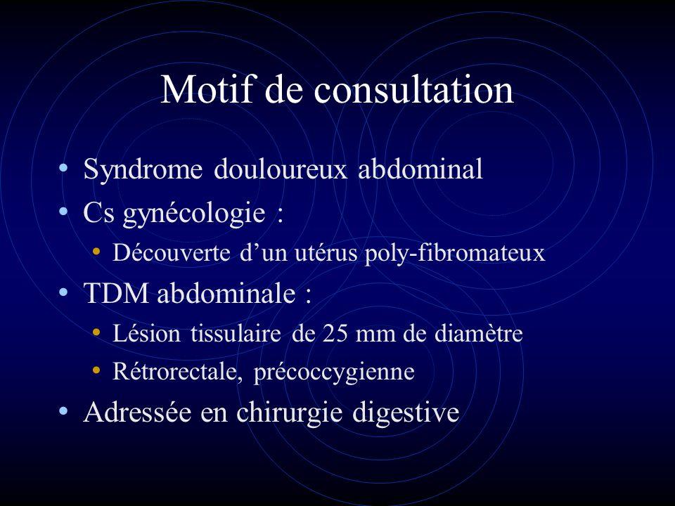 Motif de consultation Syndrome douloureux abdominal Cs gynécologie :