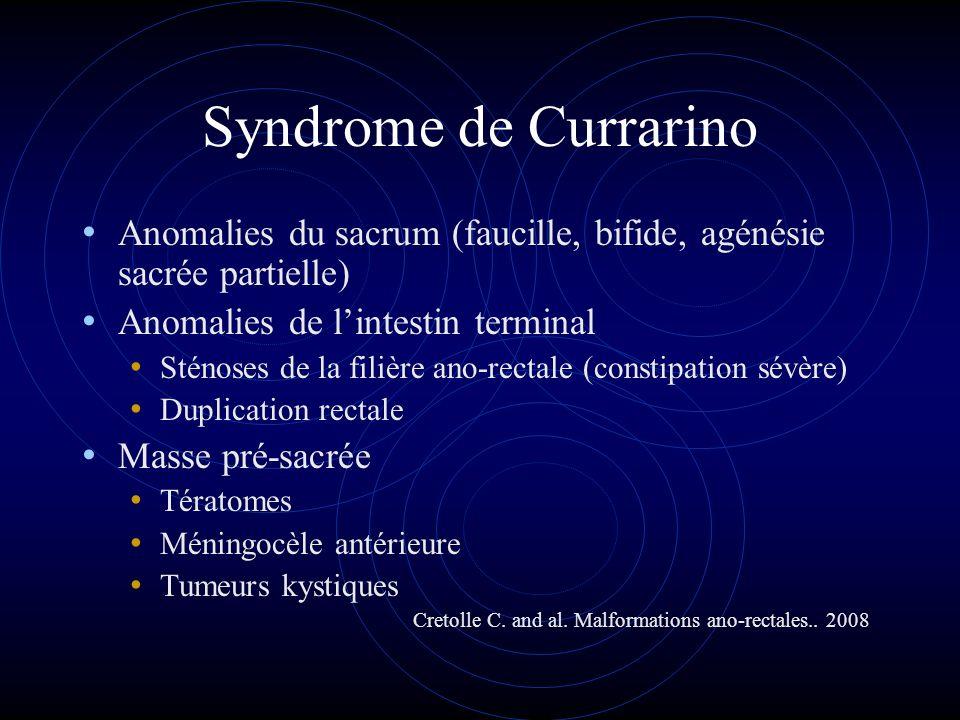 Syndrome de Currarino Anomalies du sacrum (faucille, bifide, agénésie sacrée partielle) Anomalies de l'intestin terminal.