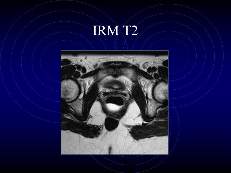 IRM T2