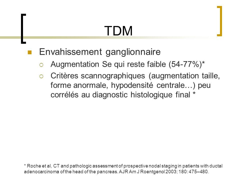 TDM Envahissement ganglionnaire