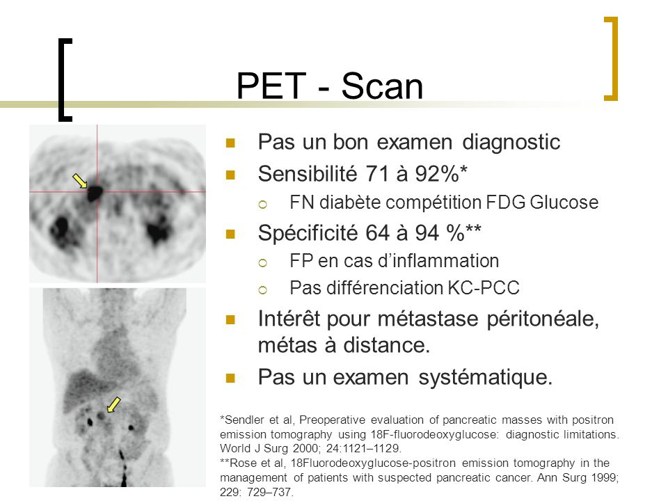 PET - Scan Pas un bon examen diagnostic Sensibilité 71 à 92%*