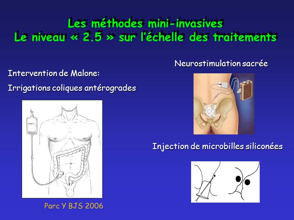 Les méthodes mini-invasives