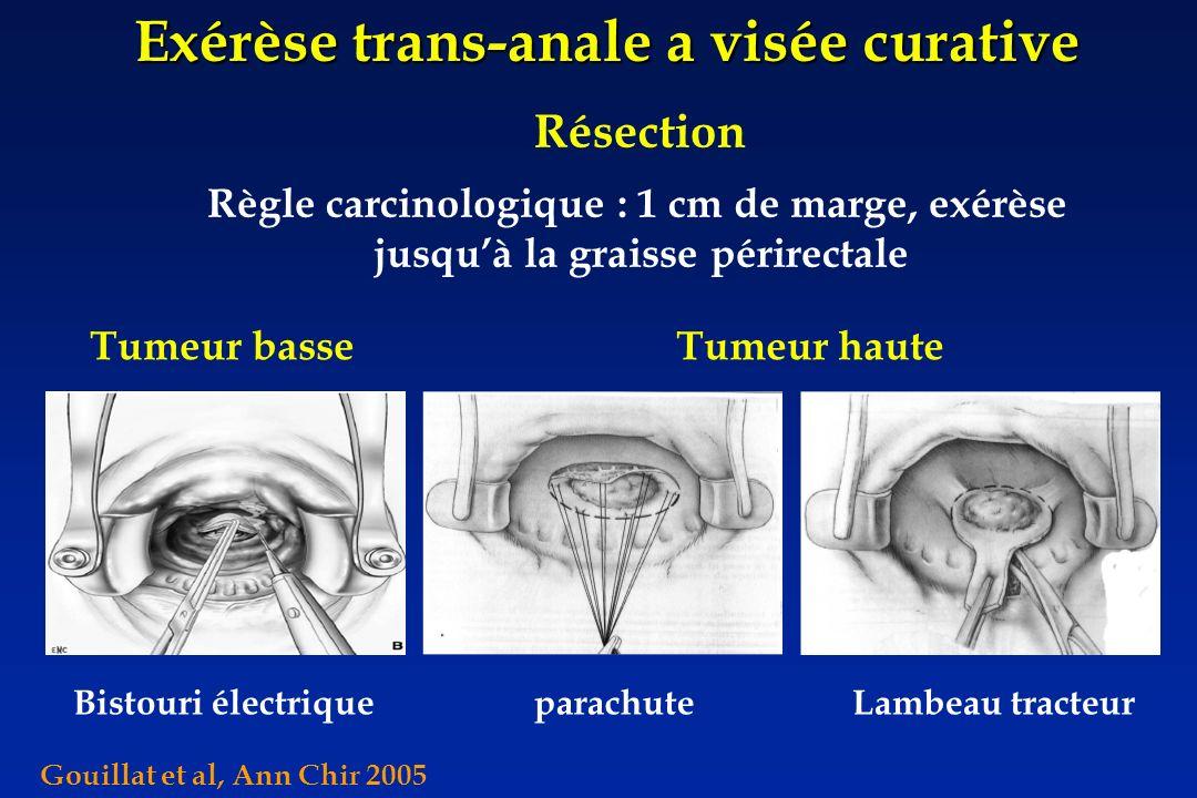 Exérèse trans-anale a visée curative