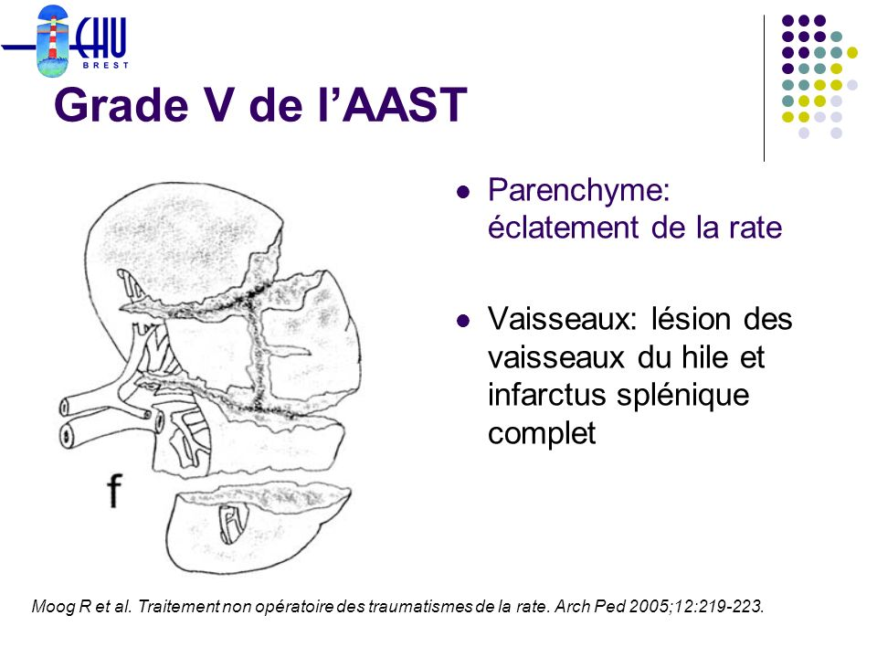 Grade V de l'AAST Parenchyme: éclatement de la rate
