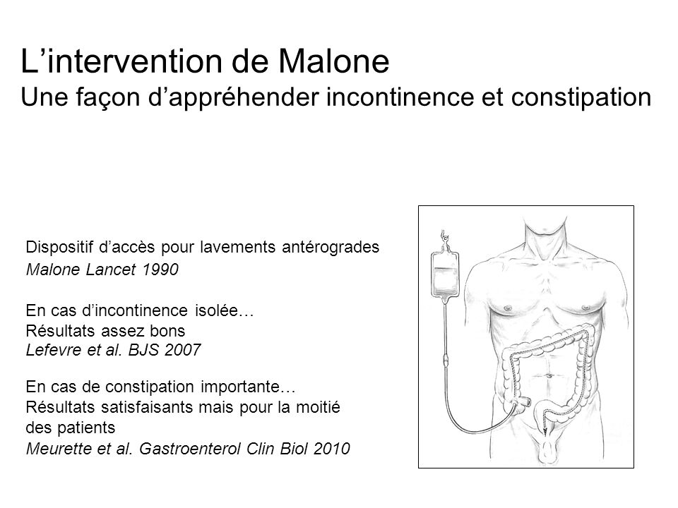 L'intervention de Malone