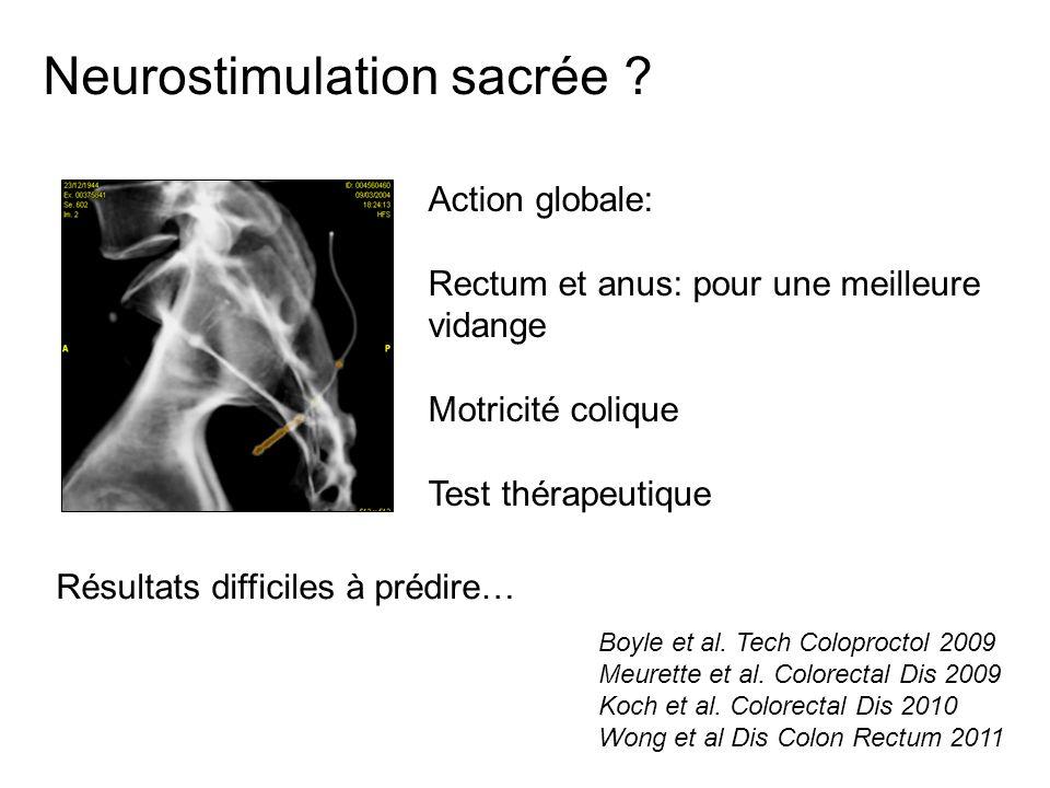 Neurostimulation sacrée