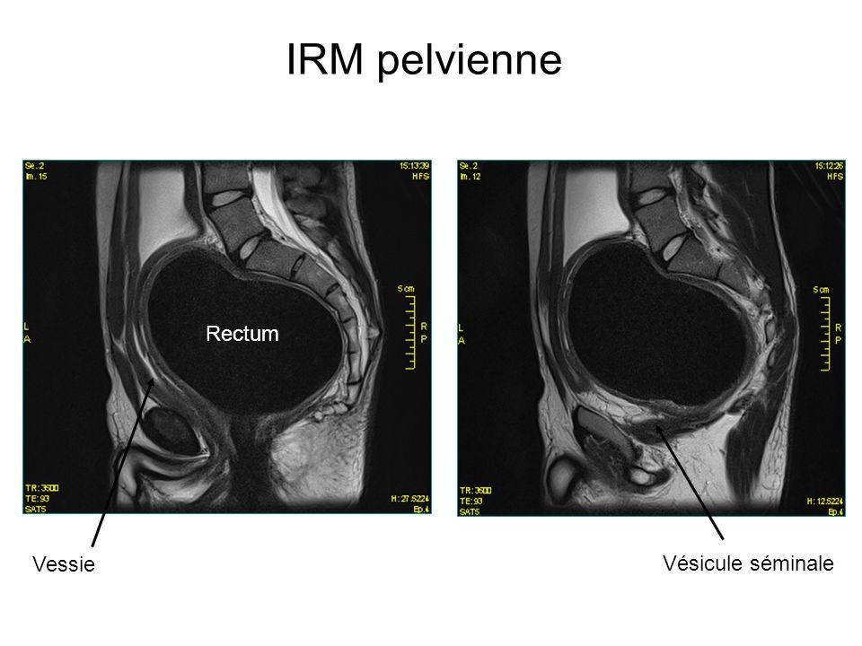 IRM pelvienne Rectum Vessie Vésicule séminale