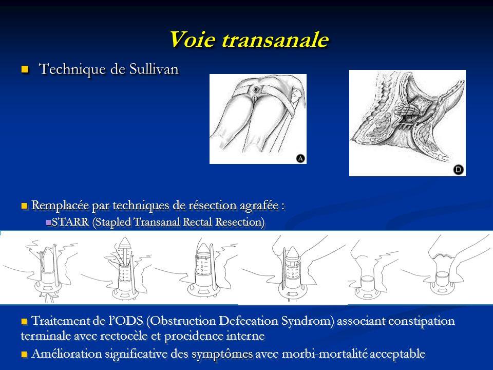 Voie transanale Technique de Sullivan