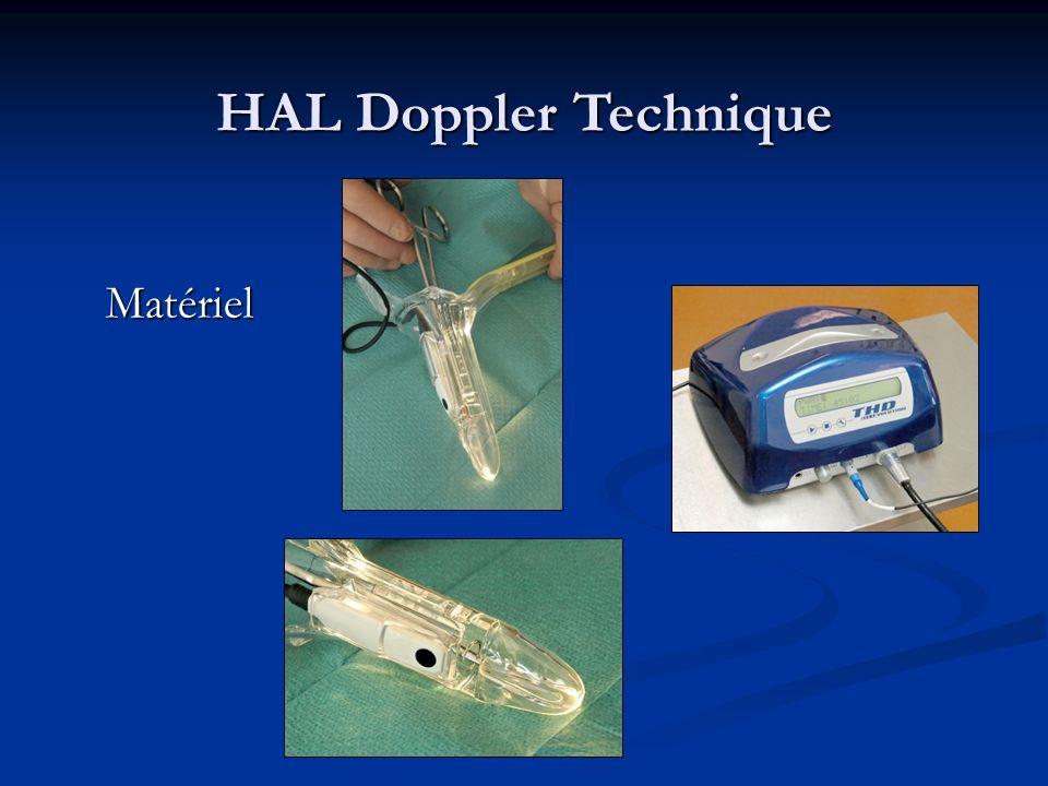 HAL Doppler Technique Matériel