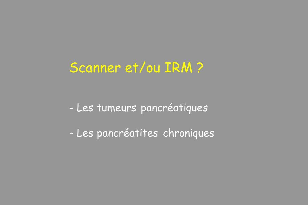 Scanner et/ou IRM Les tumeurs pancréatiques