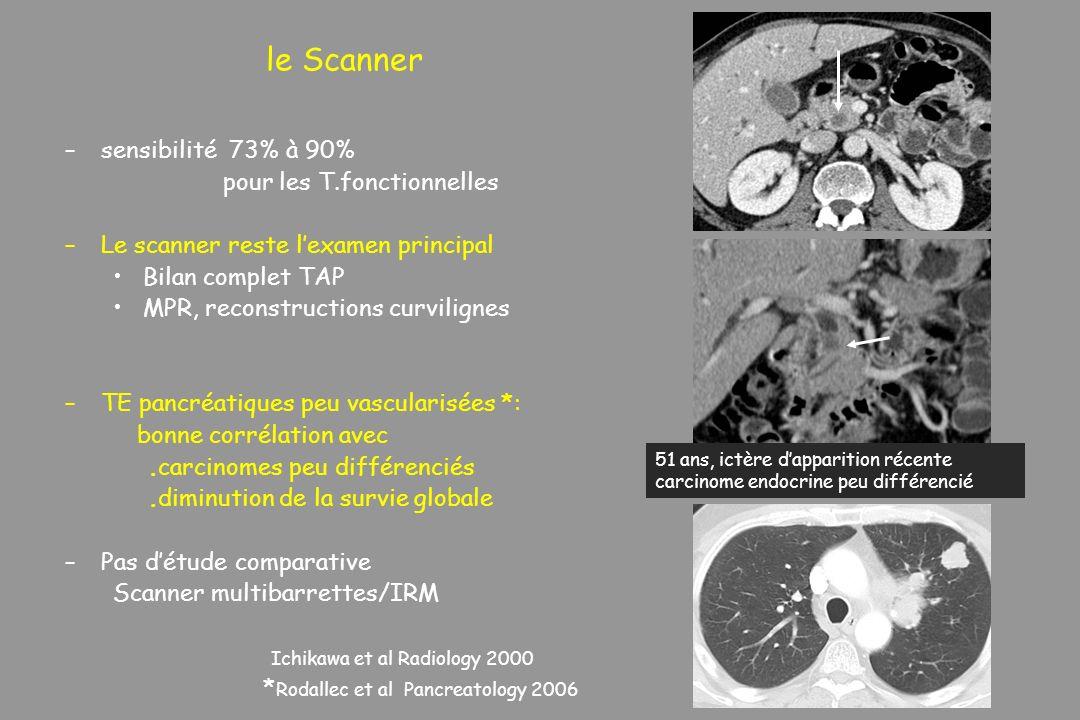 le Scanner sensibilité 73% à 90% pour les T.fonctionnelles
