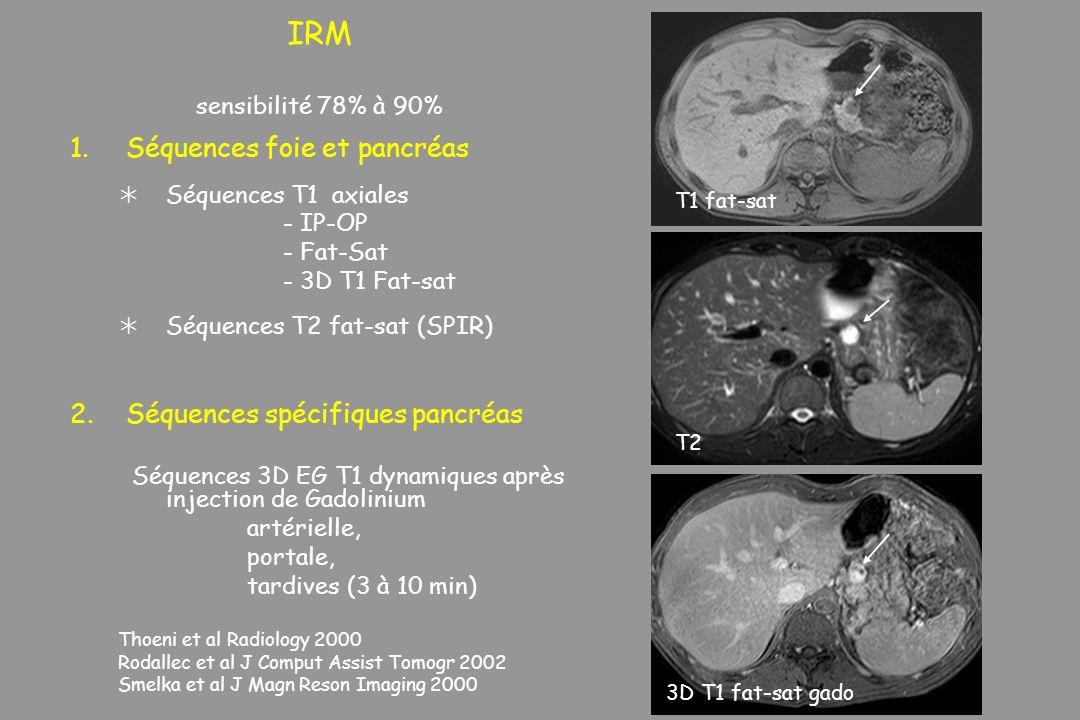 IRM sensibilité 78% à 90% Séquences foie et pancréas