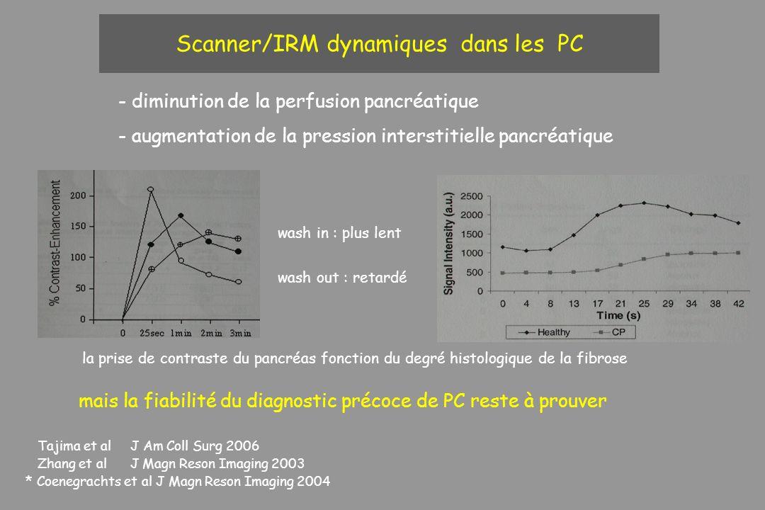 Scanner/IRM dynamiques dans les PC